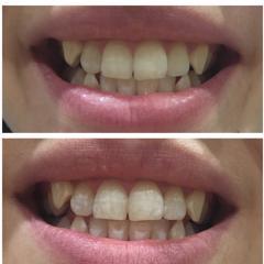 Lumineux Oral Essentials Whitening Strips 28 Strips Bonus