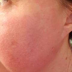 Neutrogena Rapid Clear Stubborn Acne Spot Gel Maximum Strength
